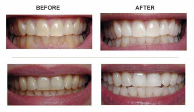 چگونه دندان هایم سفید تر به نظر برسند؟