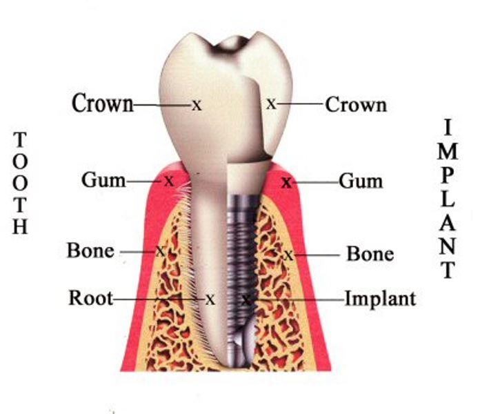ایمپلنتهای دندانی چه هستند؟