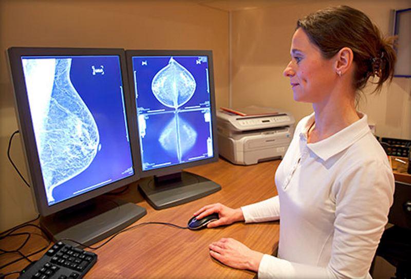 بررسی ژنتیکی احتمال بروز سرطان سینه و تخمدان BRCA1 , BRCA2